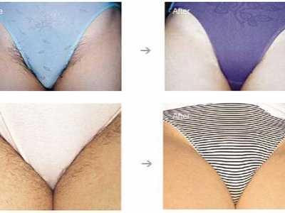 阴道整形对比图 女性阴部脱毛前后对比图示